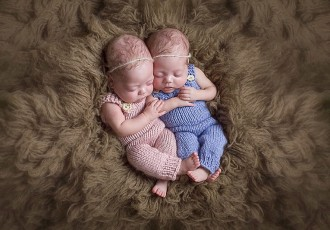 Identical Twin Girls | Anya & Araya
